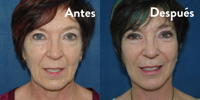 aurea-clinic-monica-antes-y-despues-691-x-346