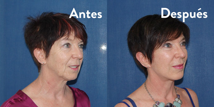 aurea-clinic-monica-antes-y-despues-perfil-691-x-346
